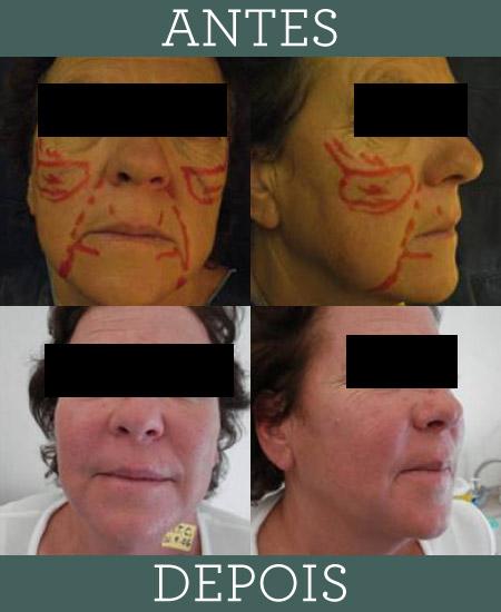 Rejuvenescimento do rosto com laser e fatores de crescimento