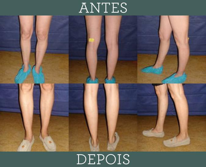 Modelação das pernas com aumento dos gémeos